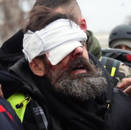 Gazer, mutiler, soumettre: la police au service du néolibéralisme autoritaire